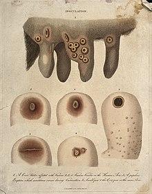 cowpox pus